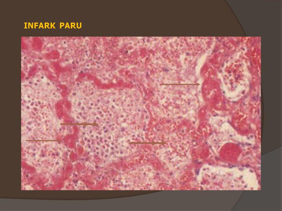 INFARK PARU