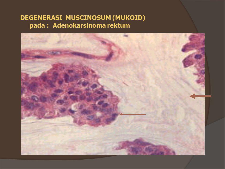 INFARK = nekrosis iskemik - jenis kelainan tergantung waktu - 24 – 48 jam: daerah pucat, reaksi radang, serabut (-) - bbrp mg : jar mati dibuang  jar lemah  ganti jar ikat - s/d bulan : fibrosis - bentuk tergantung sistem pembuluh darah 1.