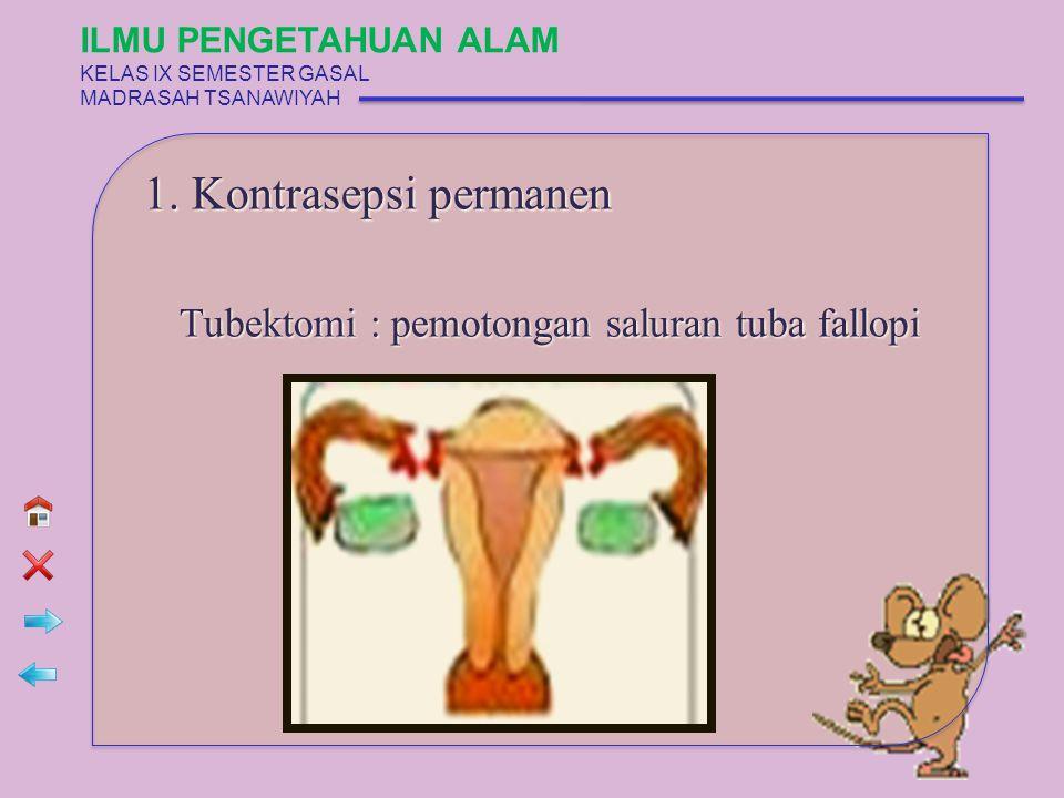 1. Kontrasepsi permanen Tubektomi : pemotongan saluran tuba fallopi ILMU PENGETAHUAN ALAM KELAS IX SEMESTER GASAL MADRASAH TSANAWIYAH