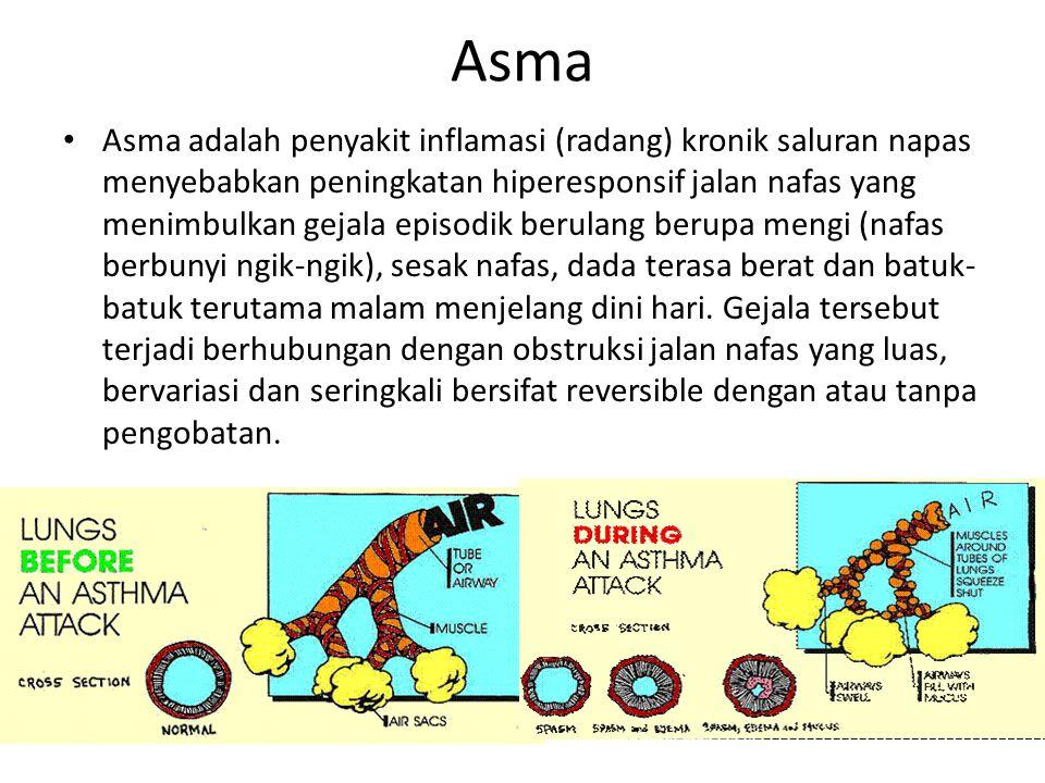 Asma Asma adalah penyakit inflamasi (radang) kronik saluran napas menyebabkan peningkatan hiperesponsif jalan nafas yang menimbulkan gejala episodik b
