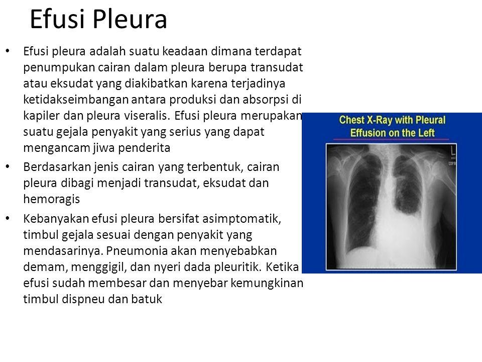 Efusi Pleura Efusi pleura adalah suatu keadaan dimana terdapat penumpukan cairan dalam pleura berupa transudat atau eksudat yang diakibatkan karena te