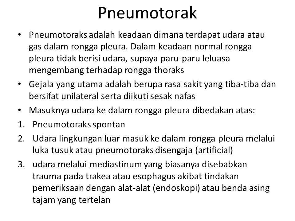 Pneumotorak Pneumotoraks adalah keadaan dimana terdapat udara atau gas dalam rongga pleura. Dalam keadaan normal rongga pleura tidak berisi udara, sup