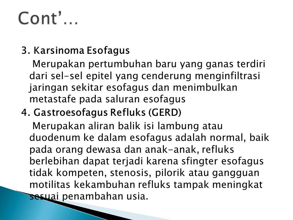 3. Karsinoma Esofagus Merupakan pertumbuhan baru yang ganas terdiri dari sel-sel epitel yang cenderung menginfiltrasi jaringan sekitar esofagus dan me