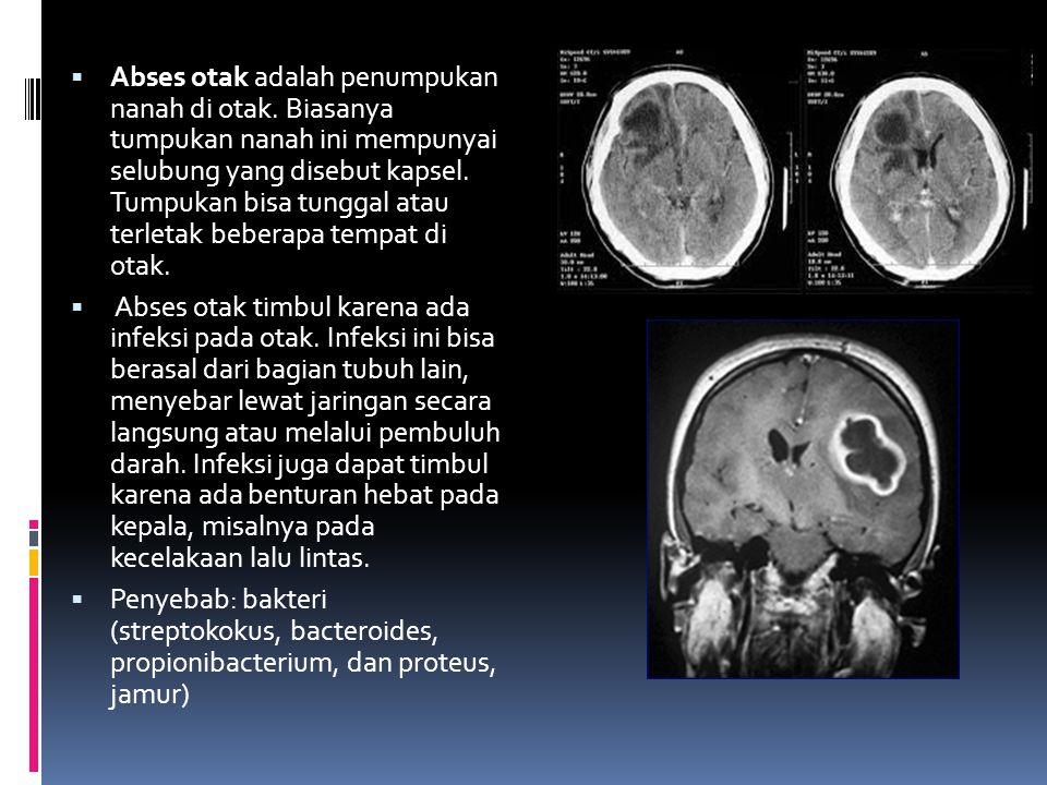  Abses otak adalah penumpukan nanah di otak. Biasanya tumpukan nanah ini mempunyai selubung yang disebut kapsel. Tumpukan bisa tunggal atau terletak