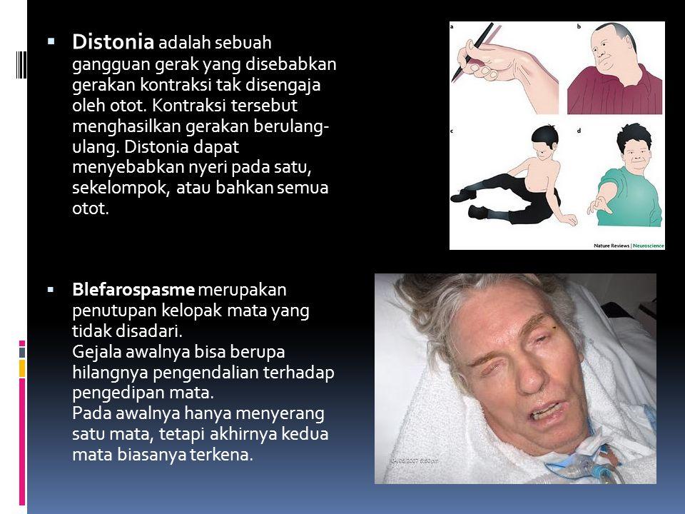  Distonia adalah sebuah gangguan gerak yang disebabkan gerakan kontraksi tak disengaja oleh otot. Kontraksi tersebut menghasilkan gerakan berulang- u