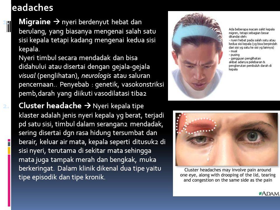 Headaches 1. Migraine  nyeri berdenyut hebat dan berulang, yang biasanya mengenai salah satu sisi kepala tetapi kadang mengenai kedua sisi kepala. Ny