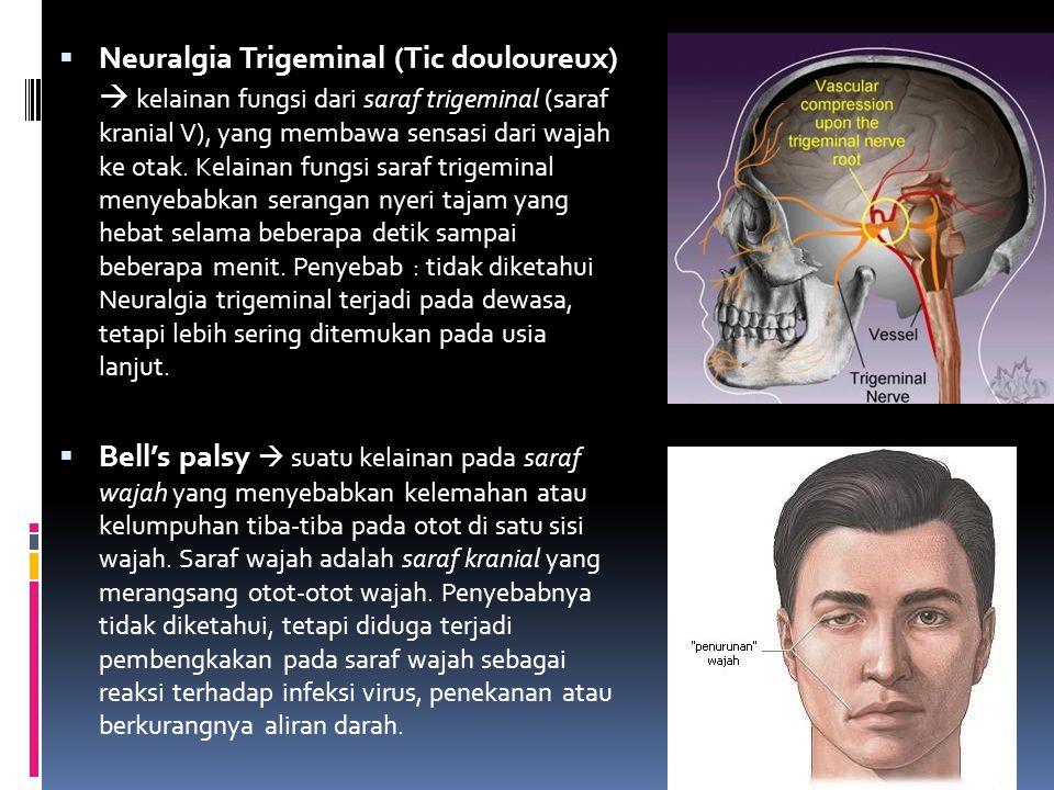  Neuralgia Trigeminal (Tic douloureux)  kelainan fungsi dari saraf trigeminal (saraf kranial V), yang membawa sensasi dari wajah ke otak. Kelainan f