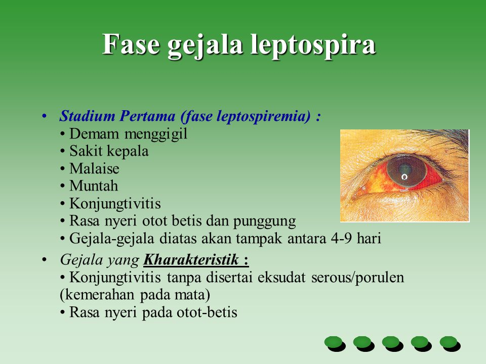 Fase gejala leptospira Stadium Pertama (fase leptospiremia) : Demam menggigil Sakit kepala Malaise Muntah Konjungtivitis Rasa nyeri otot betis dan pun