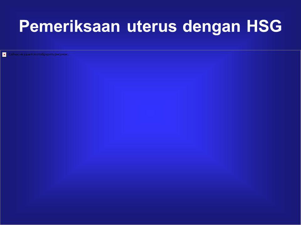 Pemeriksaan uterus dengan HSG