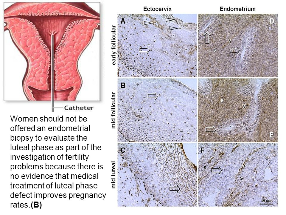 Women should not be offered an endometrial biopsy to evaluate the luteal phase as part of the investigation of fertility problems because there is no evidence that medical treatment of luteal phase defect improves pregnancy rates.(B)