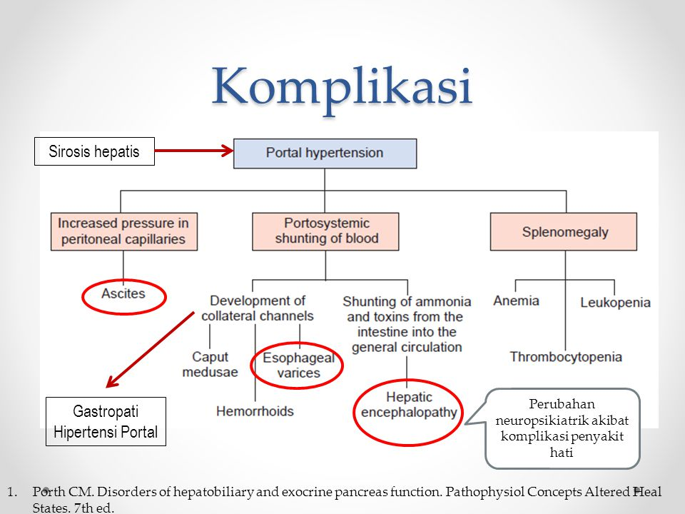 Komplikasi 1.Porth CM. Disorders of hepatobiliary and exocrine pancreas function. Pathophysiol Concepts Altered Heal States. 7th ed. Sirosis hepatis G