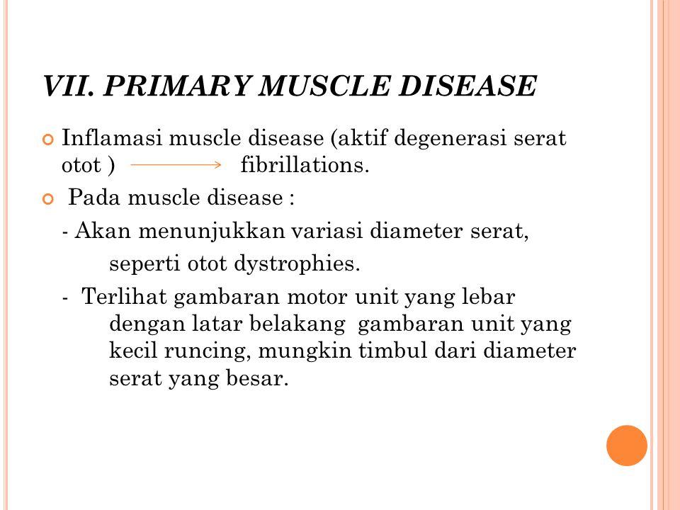 VII. PRIMARY MUSCLE DISEASE Inflamasi muscle disease (aktif degenerasi serat otot ) fibrillations. Pada muscle disease : - Akan menunjukkan variasi di