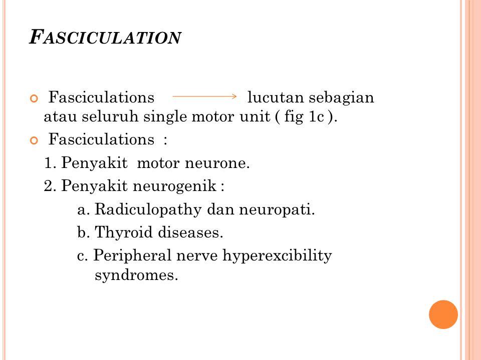 F ASCICULATION Fasciculations lucutan sebagian atau seluruh single motor unit ( fig 1c ).
