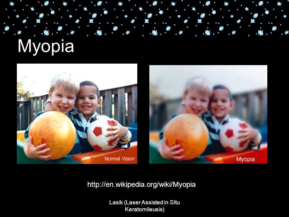 Lasik (Laser Assisted in SItu Keratomileusis) Myopia http://en.wikipedia.org/wiki/Myopia
