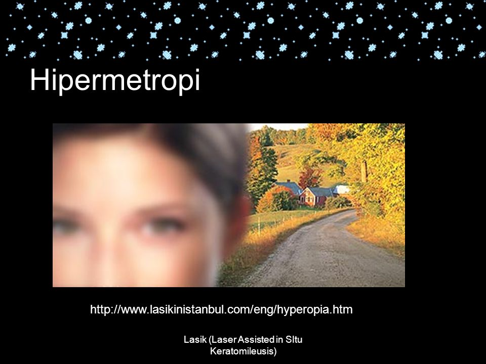 Lasik (Laser Assisted in SItu Keratomileusis) Hipermetropi http://www.lasikinistanbul.com/eng/hyperopia.htm