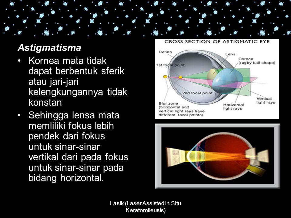 Lasik (Laser Assisted in SItu Keratomileusis) Astigmatisma Kornea mata tidak dapat berbentuk sferik atau jari-jari kelengkungannya tidak konstan Sehin