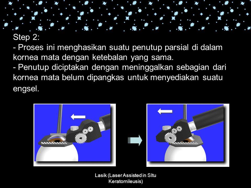 Lasik (Laser Assisted in SItu Keratomileusis) Step 2: - Proses ini menghasikan suatu penutup parsial di dalam kornea mata dengan ketebalan yang sama.
