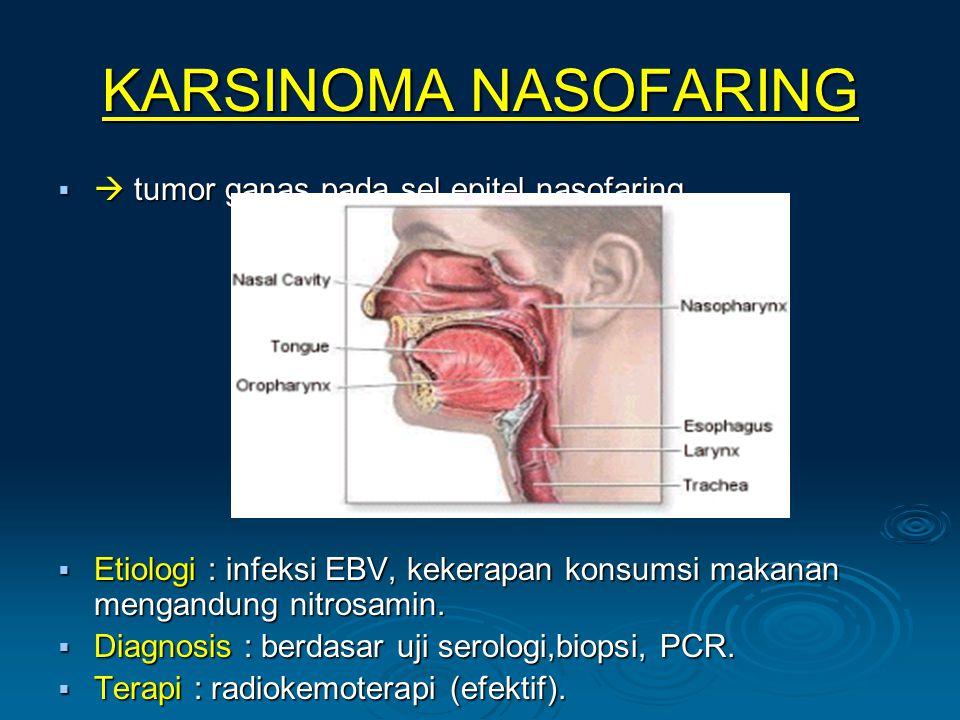 KARSINOMA NASOFARING   tumor ganas pada sel epitel nasofaring.  Etiologi : infeksi EBV, kekerapan konsumsi makanan mengandung nitrosamin.  Diagnos