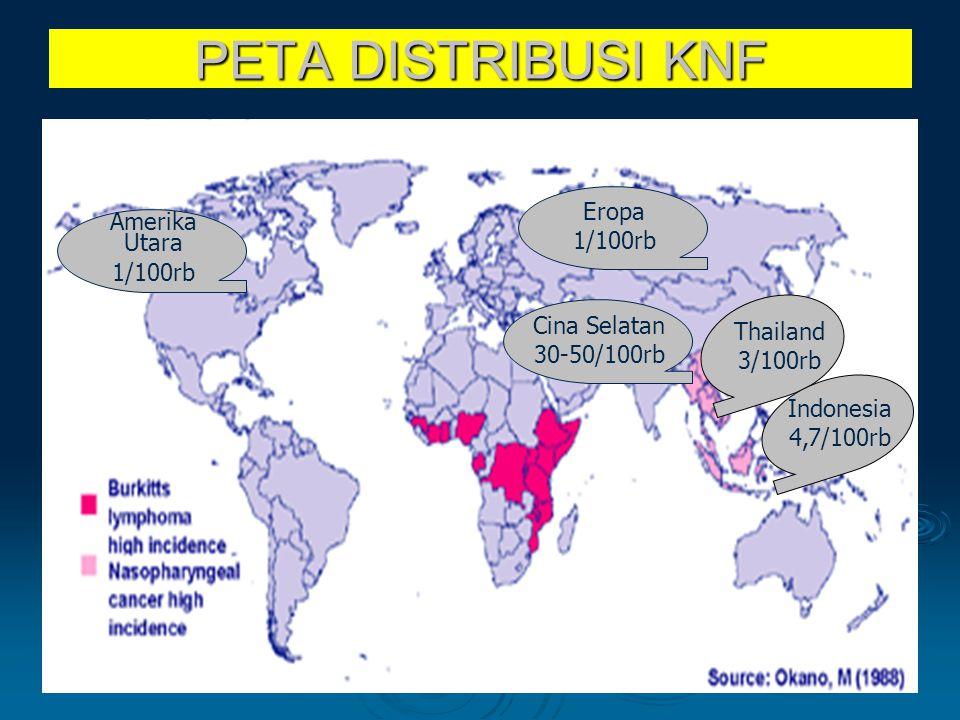 PETA DISTRIBUSI KNF Cina Selatan 30-50/100rb Thailand 3/100rb Indonesia 4,7/100rb Eropa 1/100rb Amerika Utara 1/100rb
