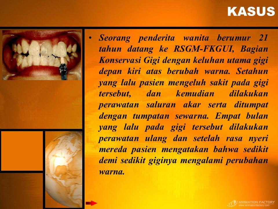 KASUS Seorang penderita wanita berumur 21 tahun datang ke RSGM-FKGUI, Bagian Konservasi Gigi dengan keluhan utama gigi depan kiri atas berubah warna.