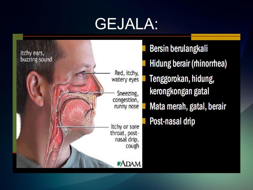 GEJALA:
