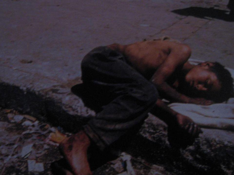 Siantar, Selama tahun 2011 lalu, Dinas Kesehatan Sumatera Utara mencatat mencapai 559 warga yg tewas diakibatkan oleh penyakit acquired immune deficiency syndrome (Aids).