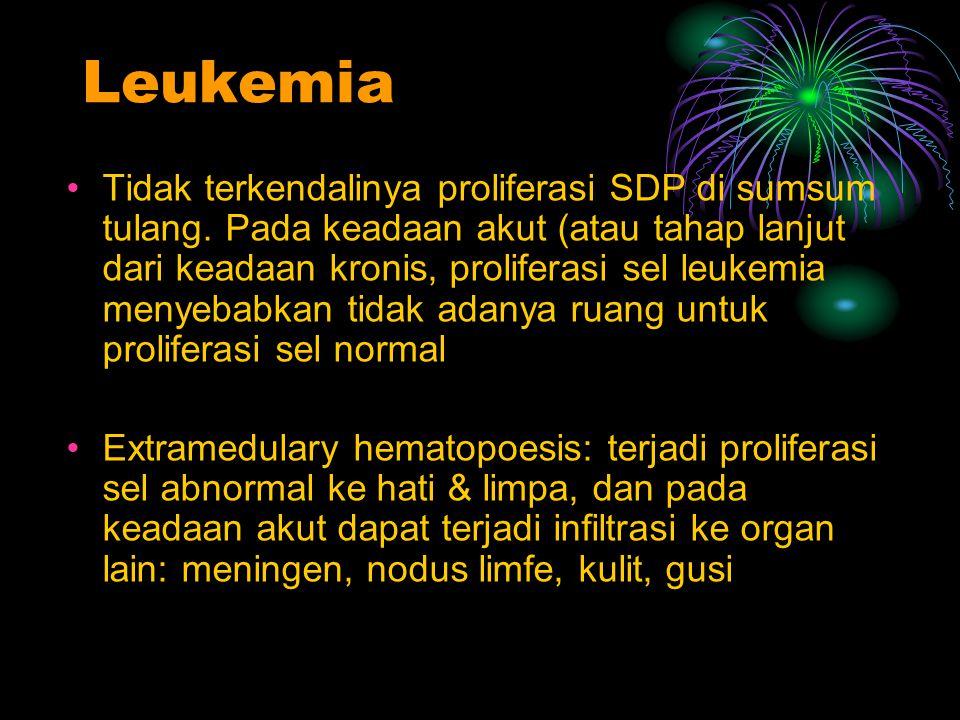 Leukemia Tidak terkendalinya proliferasi SDP di sumsum tulang. Pada keadaan akut (atau tahap lanjut dari keadaan kronis, proliferasi sel leukemia meny