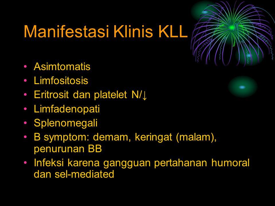 Asimtomatis Limfositosis Eritrosit dan platelet N/↓ Limfadenopati Splenomegali B symptom: demam, keringat (malam), penurunan BB Infeksi karena ganggua