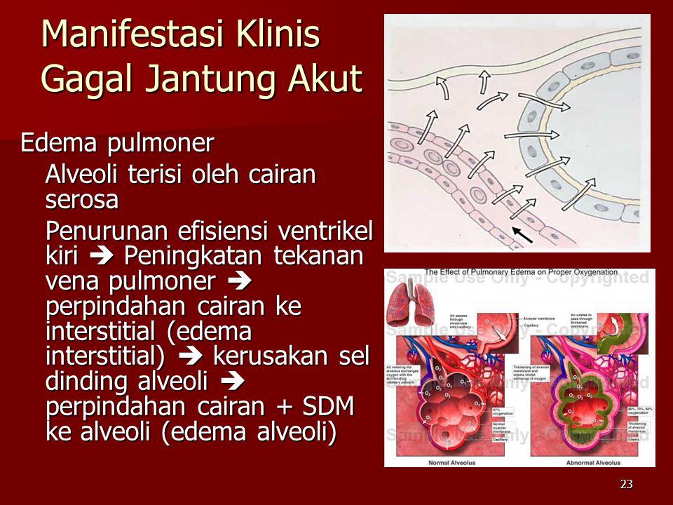 23 Manifestasi Klinis Gagal Jantung Akut Edema pulmoner Alveoli terisi oleh cairan serosa Penurunan efisiensi ventrikel kiri  Peningkatan tekanan vena pulmoner  perpindahan cairan ke interstitial (edema interstitial)  kerusakan sel dinding alveoli  perpindahan cairan + SDM ke alveoli (edema alveoli)