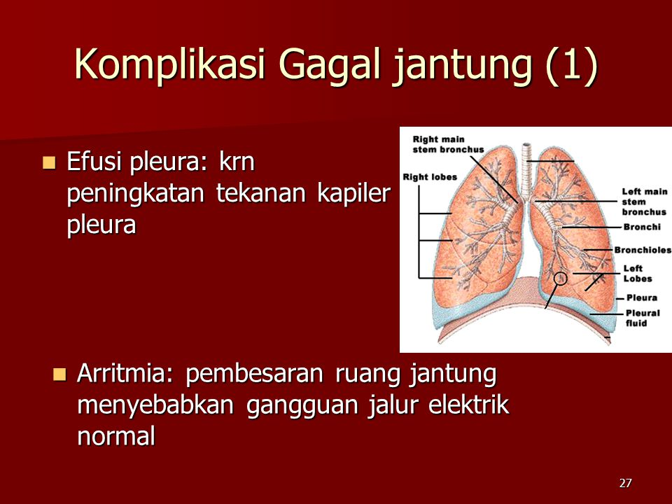 27 Komplikasi Gagal jantung (1) Efusi pleura: krn peningkatan tekanan kapiler pleura Efusi pleura: krn peningkatan tekanan kapiler pleura Arritmia: pe