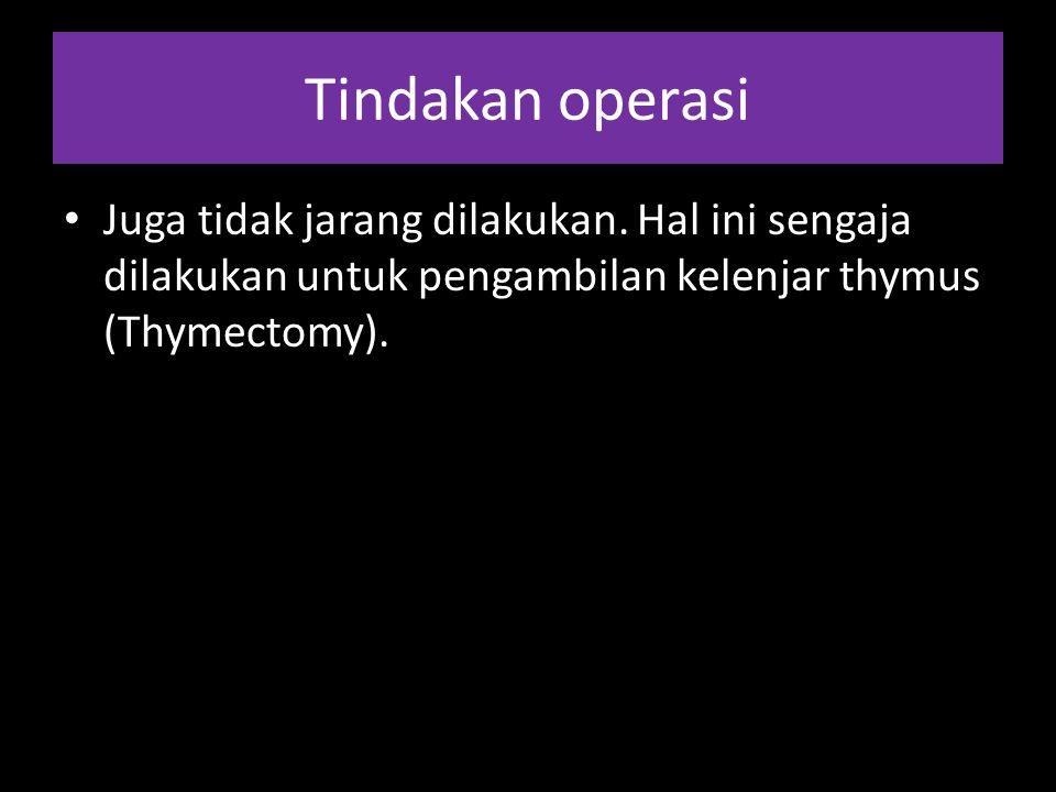 Tindakan operasi Juga tidak jarang dilakukan. Hal ini sengaja dilakukan untuk pengambilan kelenjar thymus (Thymectomy).