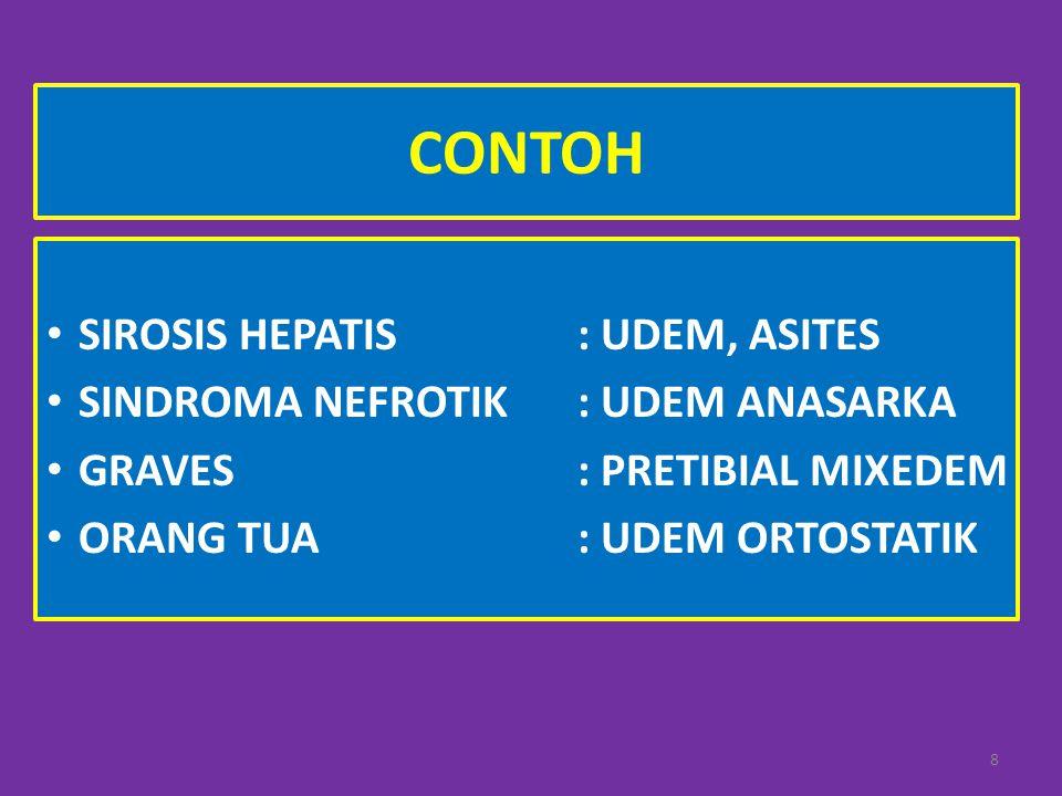 CONTOH SIROSIS HEPATIS: UDEM, ASITES SINDROMA NEFROTIK: UDEM ANASARKA GRAVES: PRETIBIAL MIXEDEM ORANG TUA: UDEM ORTOSTATIK 8