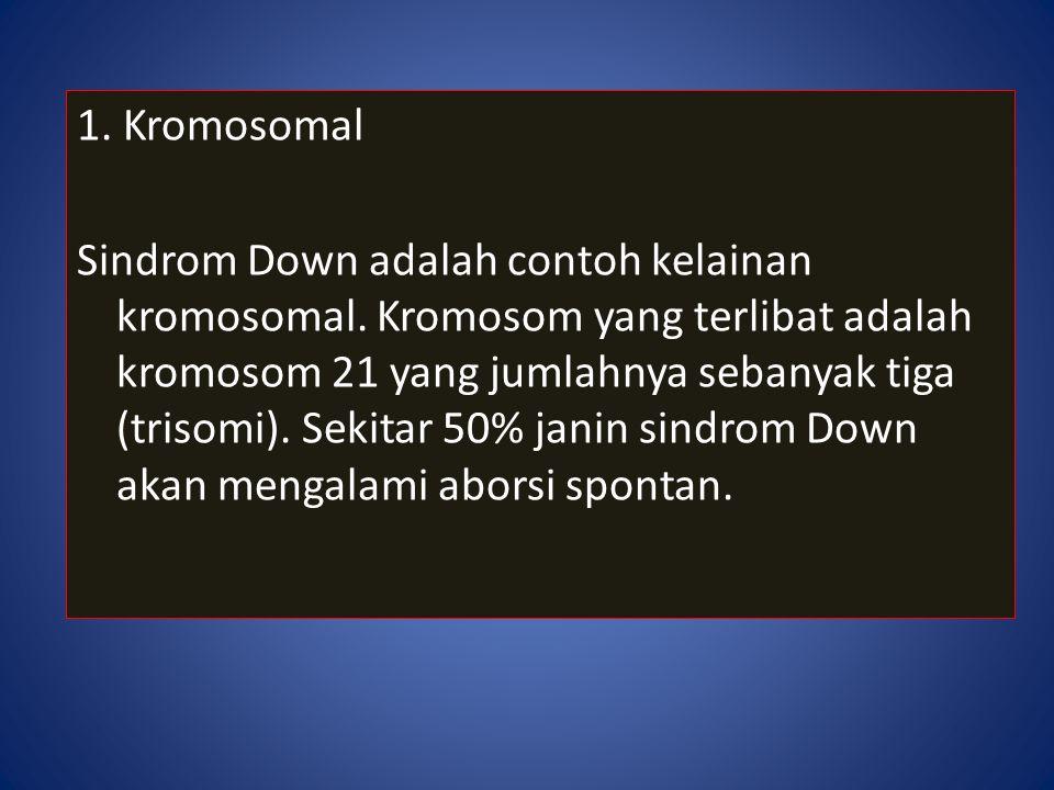 1. Kromosomal Sindrom Down adalah contoh kelainan kromosomal. Kromosom yang terlibat adalah kromosom 21 yang jumlahnya sebanyak tiga (trisomi). Sekita