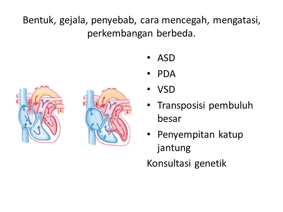 Bentuk, gejala, penyebab, cara mencegah, mengatasi, perkembangan berbeda. ASD PDA VSD Transposisi pembuluh besar Penyempitan katup jantung Konsultasi