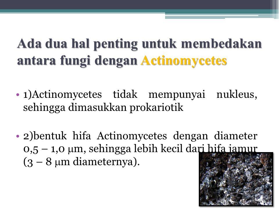 Ada dua hal penting untuk membedakan antara fungi dengan Actinomycetes 1)Actinomycetes tidak mempunyai nukleus, sehingga dimasukkan prokariotik 2)bentuk hifa Actinomycetes dengan diameter 0,5 – 1,0  m, sehingga lebih kecil dari hifa jamur (3 – 8  m diameternya).