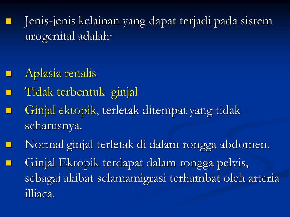 Jenis-jenis kelainan yang dapat terjadi pada sistem urogenital adalah: Jenis-jenis kelainan yang dapat terjadi pada sistem urogenital adalah: Aplasia