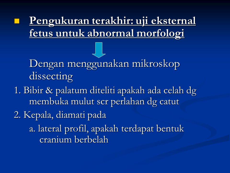 Pengukuran terakhir: uji eksternal fetus untuk abnormal morfologi Pengukuran terakhir: uji eksternal fetus untuk abnormal morfologi Dengan menggunakan