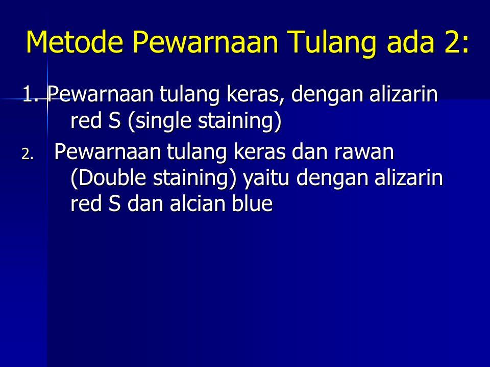 Metode Pewarnaan Tulang ada 2: 1. Pewarnaan tulang keras, dengan alizarin red S (single staining) 2. Pewarnaan tulang keras dan rawan (Double staining