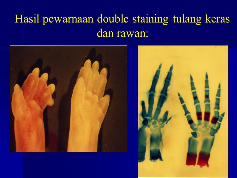 KONTROL Hasil pewarnaan double staining tulang keras dan rawan: