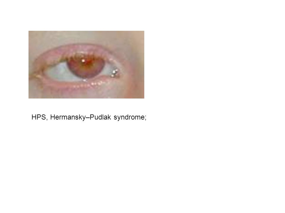 HPS, Hermansky–Pudlak syndrome;