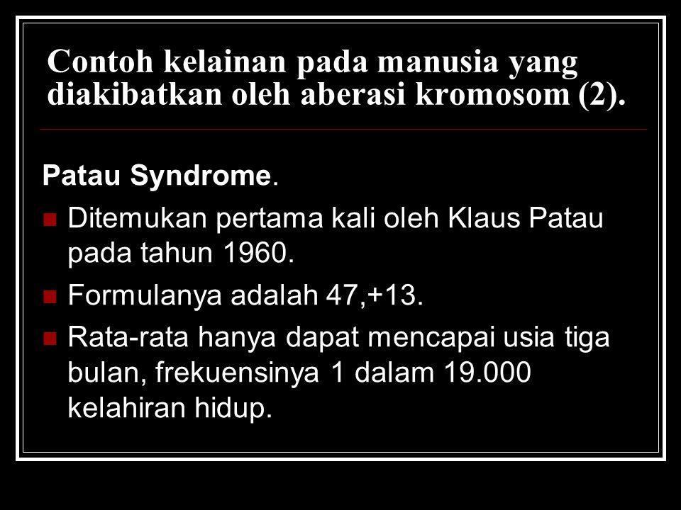Contoh kelainan pada manusia yang diakibatkan oleh aberasi kromosom (2). Patau Syndrome. Ditemukan pertama kali oleh Klaus Patau pada tahun 1960. Form