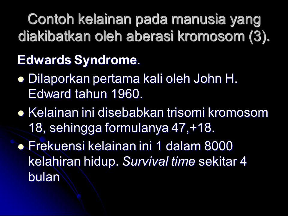 Contoh kelainan pada manusia yang diakibatkan oleh aberasi kromosom (3). Edwards Syndrome. Dilaporkan pertama kali oleh John H. Edward tahun 1960. Kel