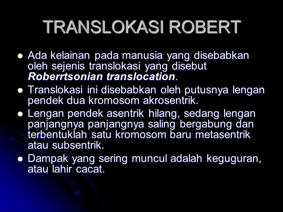 TRANSLOKASI ROBERT Ada kelainan pada manusia yang disebabkan oleh sejenis translokasi yang disebut Roberrtsonian translocation. Ada kelainan pada manu