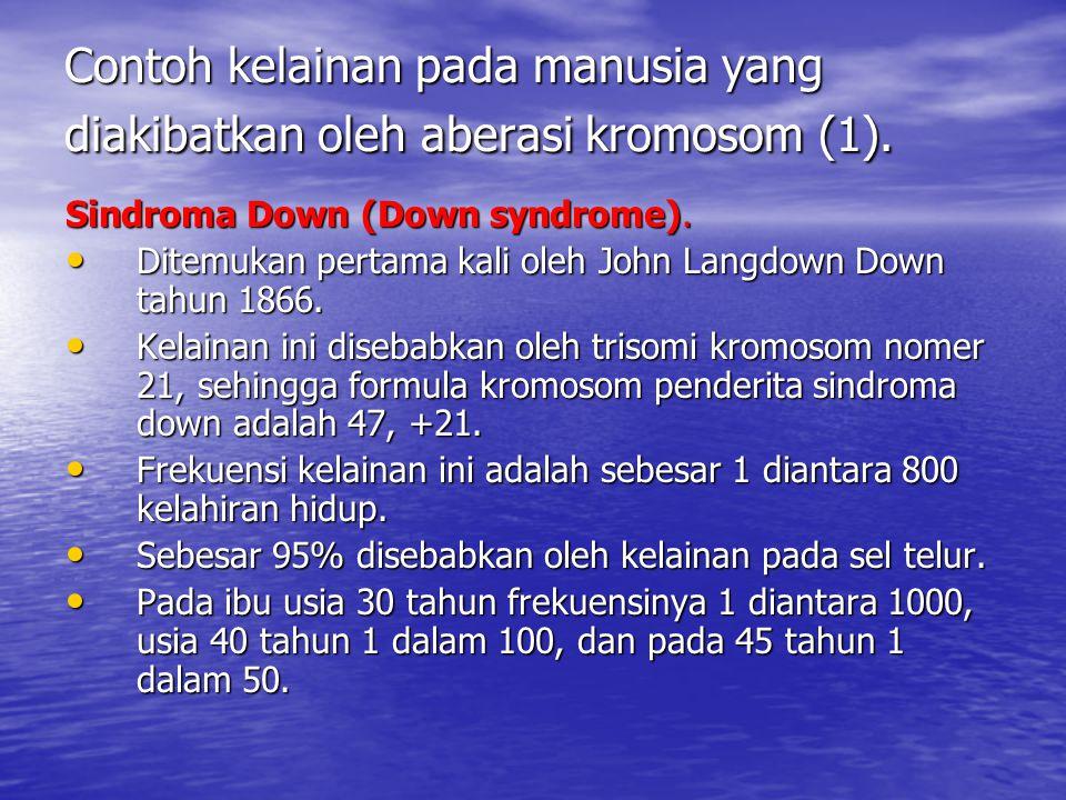 Contoh kelainan pada manusia yang diakibatkan oleh aberasi kromosom (1). Sindroma Down (Down syndrome). Ditemukan pertama kali oleh John Langdown Down