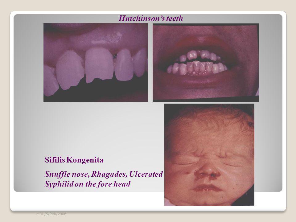 MDL/S/Peb/2006 Sifilis Kongenita Snuffle nose, Rhagades, Ulcerated Syphilid on the fore head Hutchinson's teeth