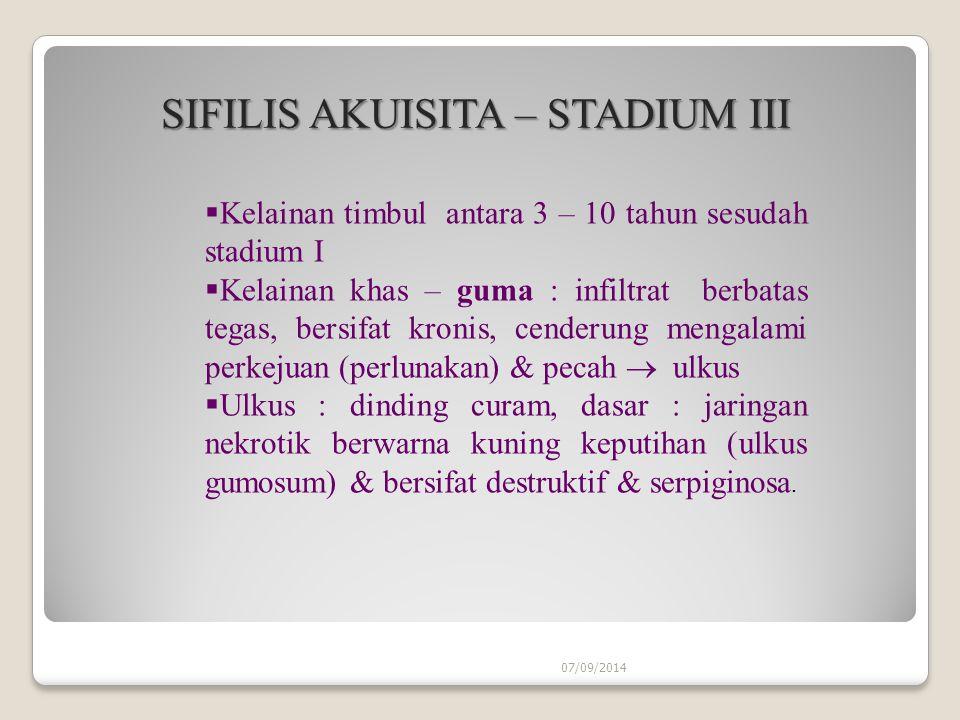 07/09/2014 SIFILIS AKUISITA – STADIUM III SIFILIS AKUISITA – STADIUM III  Kelainan timbul antara 3 – 10 tahun sesudah stadium I  Kelainan khas – guma : infiltrat berbatas tegas, bersifat kronis, cenderung mengalami perkejuan (perlunakan) & pecah  ulkus  Ulkus : dinding curam, dasar : jaringan nekrotik berwarna kuning keputihan (ulkus gumosum) & bersifat destruktif & serpiginosa.