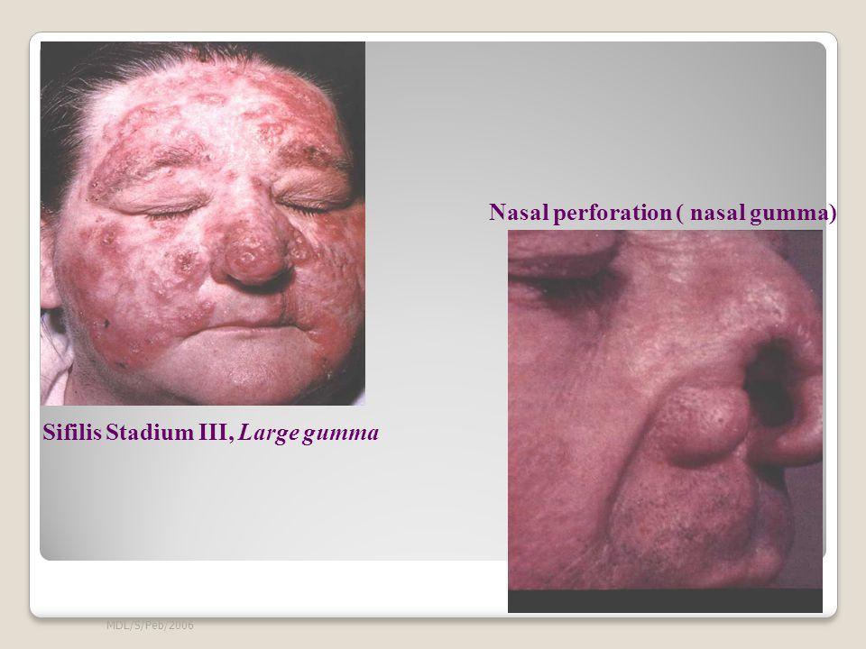 MDL/S/Peb/2006 Sifilis Stadium III, Large gumma Nasal perforation ( nasal gumma)