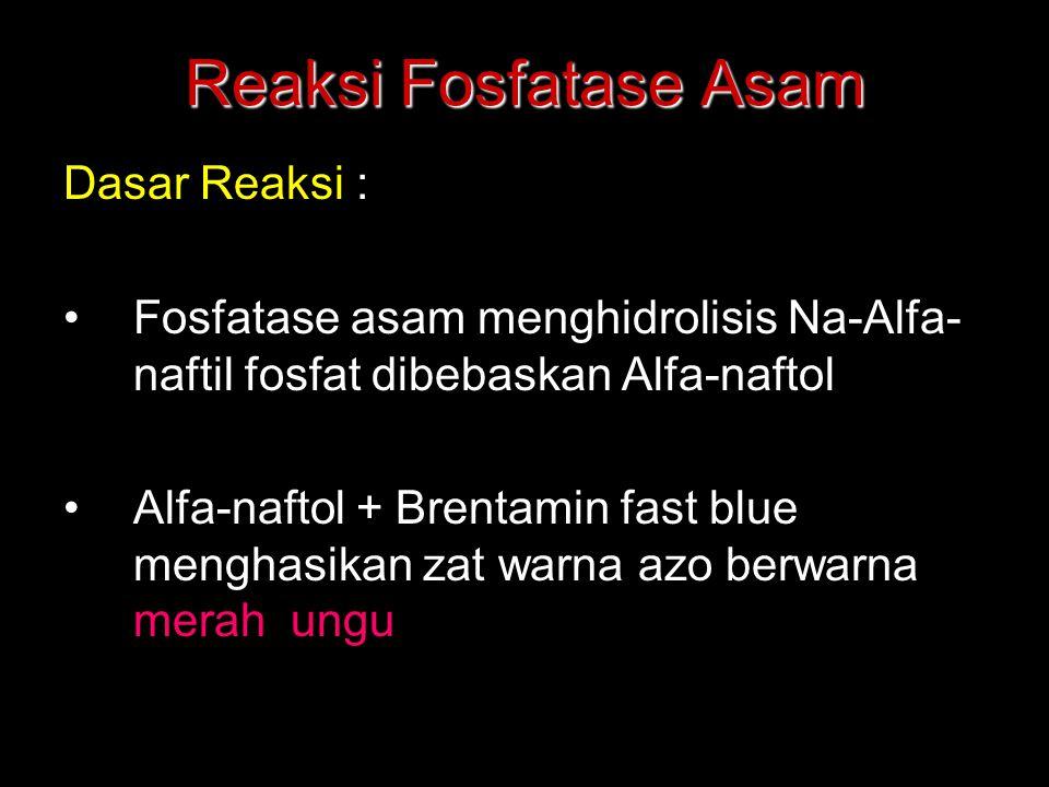 Reaksi Fosfatase Asam Dasar Reaksi : Fosfatase asam menghidrolisis Na-Alfa- naftil fosfat dibebaskan Alfa-naftol Alfa-naftol + Brentamin fast blue men