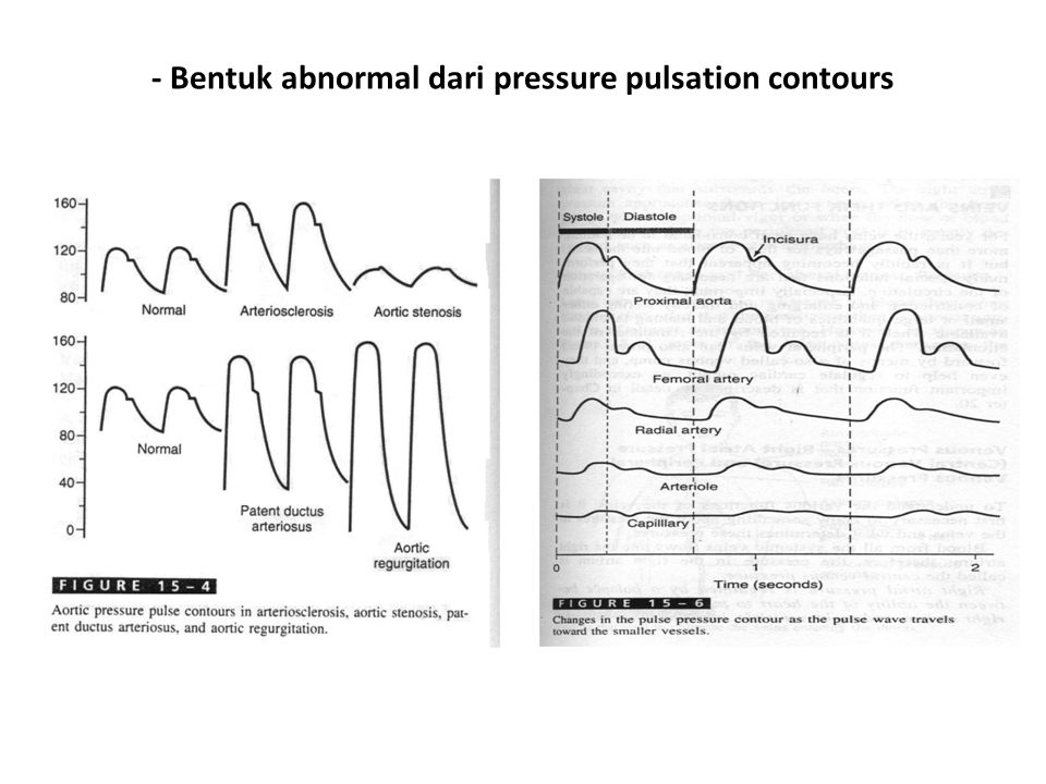 - Bentuk abnormal dari pressure pulsation contours