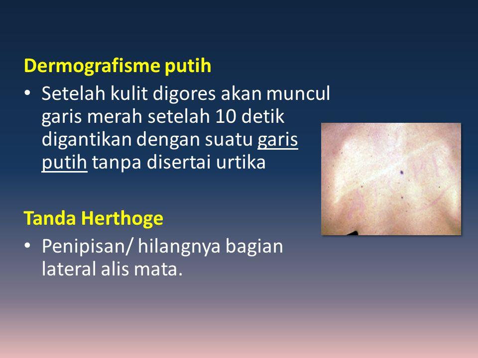 Dermografisme putih Setelah kulit digores akan muncul garis merah setelah 10 detik digantikan dengan suatu garis putih tanpa disertai urtika Tanda Her